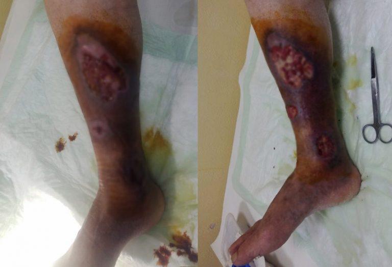 Proteză pentru picior, tratament permanent și consiliere
